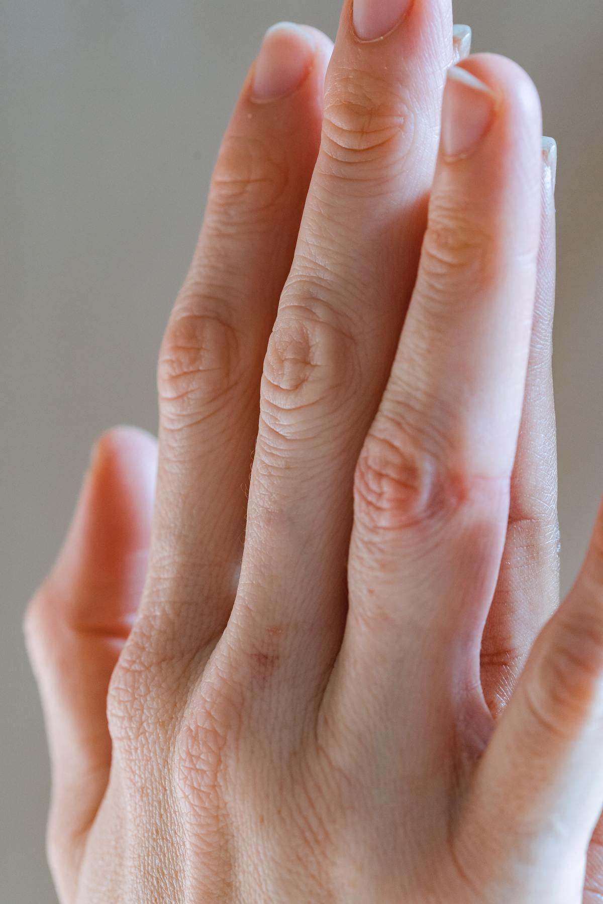 Kyste-mucoide-postoperatoire